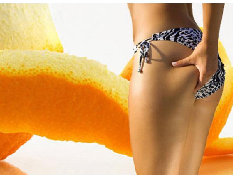 3500 din. umesto redovne cene od 10.000 din. zaPaket od 5 Anticelulit masaža (5x45min.) u studiju lepote ldquoBRANČIrdquo Cankareva 26 Novi Sad!  Masažu vrscaroni profesionalna fizioterapeutkinja! Celulit je masno tkivo koje se skuplja na tačno određenim delovima tela (bedrima, stražnjici, ponekad oko kolena, stomaku). Dugi niz godina stručnjaci iz oblasti medicine bave se istraživanjem kako i zascaronto celulit nastaje, pored genetskih faktora tu su i hormoni, kao i nekavlitetna ishrana i način života, slabo kretanje i bavljenje sportskim aktivnostima. Osnovno pravilo anticelulit masaže je da ne sme da bude bolna i da dovede do pojave podliva i modrica. S duge strane, delovi tela koji su zahvaćeni celulitom vrlo su bolni čak i na blagi dodir, pa je to razlog da pa mnoge žene izbegavaju masažu. Ovaj bol na dodir se javlja kao znak slabe cirkulacije i akumuliranih toksina koji iritiraju nervne zavrscaronetke. Važno je i da znate da će ovaj bol nestati čim se uspostavi normalna cirkulacija u potkožnom tkivu, pa bi kod srednjeg stepena celulita treća masaža trebala biti skoro bezbolna.  Masaža je jedno od najprirodnijih i najdelotvornijih sredstava u borbi protiv celulita i u znatnoj meri će doprineti zdravlju i značajno smanjiti celulit. Da bi se razbile naslage celulita potrebna je masaža koja će ga prvo usitniti i razbiti, a zatim i putem limfe izbaciti preko bubrega. Počinje se sa nežnom i blagom masažom delova zahvaćenih celulitom, a kasnije postepeno prelazi na nescaronto intenzivniju masažu. Optimalan broj tretmana zavisi od osobe do osobe ali obično je to desetak tretmana. Anticelulitna masaža kombinuje masažu iskusne i stručne fizioterapeutkinje uz upotrebu eteričnih ulja namenjena tretiranju celulita.Cilj masaže je pokrenutanje cirkulacije, limfe, pospescaronuje izbacivanja viscaronka vode i toksina iz tela. Zato dozvolite svom telu da uživa! Bićete zdraviji i aktivniji! Radionica lepote