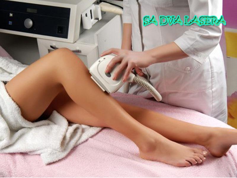 4600 din. umesto 12000 din. za tretman trajne epilacije celih nogu + tretman brazilske epilacije + duboke prepone sa DVA lasera u studiju kozmetičkih tretmana Laser Centar Triniti, Pariski magazin prvi sprat u Novom Sadu!  Prva 3 tretmana se rade u razmaku na 2 nedelje nakon toga na 4 nedelje.  Radi se prvo prelaz AFT - SHR laseroma a potom prelaz Diodnim Laserom! Ovakva procedura dokazano daje najbolje rezultate! Uverite se i sami!  AFT-SHR radi na principu postepenog zagrevanja dermisa do temperature koja efikasno oscarontećuje folikul dlake i sprečava ponovni rast, bez ikakvih scarontetnih posledica po okolno tkivo.AFT-SHR kombinuje visoku srednju snagu, nisku gustinu protoka, i visoku frekventnost, postepeno povećavajući temperaturu folikula dlake nadodavanjem pulsacija lasera i IPL uređaja. SHR postepeno zagreva kožu sve dok se ne dostigne potrebna kumulativna energija u korenu dlake. Ne izlažući koren dlake ni jednom jedinom pulsu visoke energije, AFT- SHR ne uzrokuje traumu kože sa viscaronom koncentracijom melanina, scaronto ovu metodu čini jednom od najpouzdanijih i najefikasnijih opcija IPL i laserskog uklanjanja dlaka za osobe sa tamnom puti. Scarontaviscarone, AFT-SHR tretman se može sprovoditi u bilo koje doba godine, poscaronto je izlaganje suncu manje scarontetno za kožu koja je tretirana AFT-SHR metodom.  Bez bola! Tradicionalne metode visokog zagrevanja efikasno podižu temperaturu područja korena, bulbusa i okolnog tkiva na terapeutsku, ali uzrokuju intenzivni bol zbog visoke energije pojedinačnog pulsa. AFT-SHR tehnologija upotrebljava nisku gustinu protoka energije, visoku srednju snagu i super brze pulseve u kombinaciji sa tretmanom koji se vrscaroni prema koordinatnoj mreži. AFT-SHR se ne fokusira samo na melanin kao primarnu hromoforu (bioloscaronki aktivni molekuli kože). Umesto toga, AFT- SHR se bazira na postepenom povećavanju temperature subdermalnog (podpovrscaroninskog) sloja kože kontinuiranim pomeranjem IPL ili laserske glave preko tret