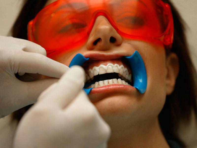 Lasersko izbeljivanje zuba850 din. umesto 6000 din. Opalescence gelovima 3x20 minuta u Laser centru Triniti, Pariski magazin, prvi sprat Novi Sad! Kako izgleda tretman Brite Smile Laserskog beljenja Zuba: 1. Gel za izbeljivanje se pažljivo nanosi na zube 2. Gel se zatim aktivira BriteSmile plavim laserom u trajanju od 20 minuta 3. Proces se ponavlja joscaron dva puta ili pet puta nakon čega iz Laser Centra odlazite sa novim, prirodno belim osmehom! _____________________ U saradnji sa Poscarontama Srbije uveli smo joscaron jedan način plaćanja(PostFin gde možete uplatiti VAUČERE svakim radnim danom kao i Subotom i Nedeljom (npr. poscaronte u Univerexportu do 20h) i to BEZ PROVIZIJE i bez popunjavanja uplatnice već samo na scaronalteru poscaronte predate PostFin broj-vaučer Vam stiže na mail nakon uplate automatski za 10 min.)!