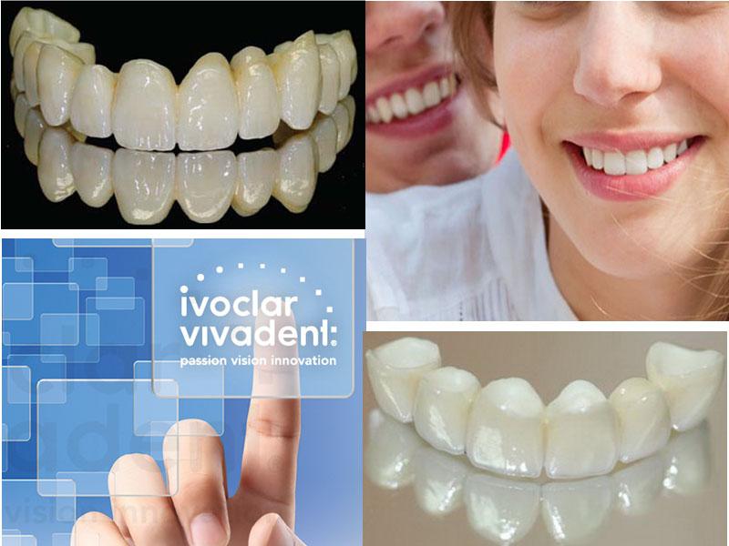 Besplatan vaučer kojim ostvarujete popust za izradu metalo-keramičkih krunica po članu (MINIMUM TRI ČLANA)  po ceni od 5500 din. umesto redovne cene od 7200 din.  ZUBNE KRUNICE Zubne krunice, poznate su kao i navlake, nadoknađuju oscarontećeno krunično zubno tkivo i u potpunosti imitiraju oblik, veličinu i boju zuba. Izrada krunica se radi u sledećim slučajevima: -prelom zubne krune zuba -zubi sa velikim karioznim defektima koji se ne mogu popraviti plombiranjem-zubi koje je neophodno zascarontititi i ojačati nakon lečenja zubnog živca-zubi sa izrazitim nepravilnostima boje i oblika MOSTOVI Zubni most je zubna nadoknada od najmanje dve spojene zubne krunice.Kod pacijenata kome nedostaje jedan ili viscarone zuba most stabilizuje zagrižaj i sprečava pomeranje i naginjanje susednih zuba u prazan prostor.Takođe onemogućava gubitak vertikalne dimenzije. Mostovi su cementirani i ne mogu se vaditi iz usta.Zubi koji nedostaju nadoknađuju se labaratorijski izrađenim krunicama koje su vezane za najmanje dve zubne navlake cementirane na prethodno prebruscaronene zube.Mostovi se koriste za nadoknadu manjeg broja izgubljenih zuba, a uslov je postojanje stabilnih i zdravih zuba za koje se fiksiraju koji služe kao nosači. U stomatoloscaronkoj ordinaciji Dental point u zavisnosti od toga scaronta je Vascaronim zubima potrebno, uz konsultaciju stomatologa učinite sve scaronto treba da biste imali Zdrav i blistav osmeh po super ceni.  Poseta zubaru većini ljudi predstavlja stres sam po sebi, a čekanje i često visoke cene taj stres dodatno pojačavaju. Popusti 021 imaju dobru vest za Vas,tako scaronto smo obezbedili da Vi kupujući vaučer na sajtu popusti021 u stomatoloscaronkoj ordinaciji Dental point Bul.Jovana Dučića 13 izabereteizradu metalo-keramičkih krunica po članu(MOST)po ceni od 5500 din umesto 7200 din . U izradi se koristi najkvalitetnijaIVOCLAR VIVADENTkeramika. Plaćanje usluga koje su u svrhu promocije vrscaronite direktno davaocu usluge.Dovoljno je da sa sobom ponesete sa