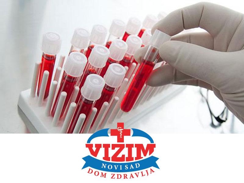 1290 din. umesto redovne cene od 2000 din. za Kompletnu laboratorijsku analizu krvi i urina u Domu zdravlja