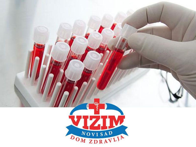 1090 din. umesto redovne cene od 2200 din. za Kompletnu laboratorijsku analizu krvi i urina u Domu zdravlja