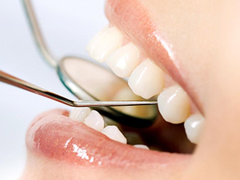 890 din.umesto 2000 din za stomatoloscaronku uslugu po izboru :za belu nano kompozitnu plombu (jednopovrscaroninska popravka jednog zuba) ili uklanjanje kamenca i poliranje zuba ili rutinsko nehirurscaronko vađenje zuba + besplatan stomatoloscaronki pregled u stomatoloscaronkoj ordinaciji