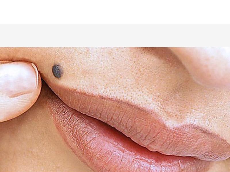 Dermoskopski pregled kože(pregled mladeža)za 1500 rsd umesto redovne cene 3000 rsd, popust 50% u Poliklinici